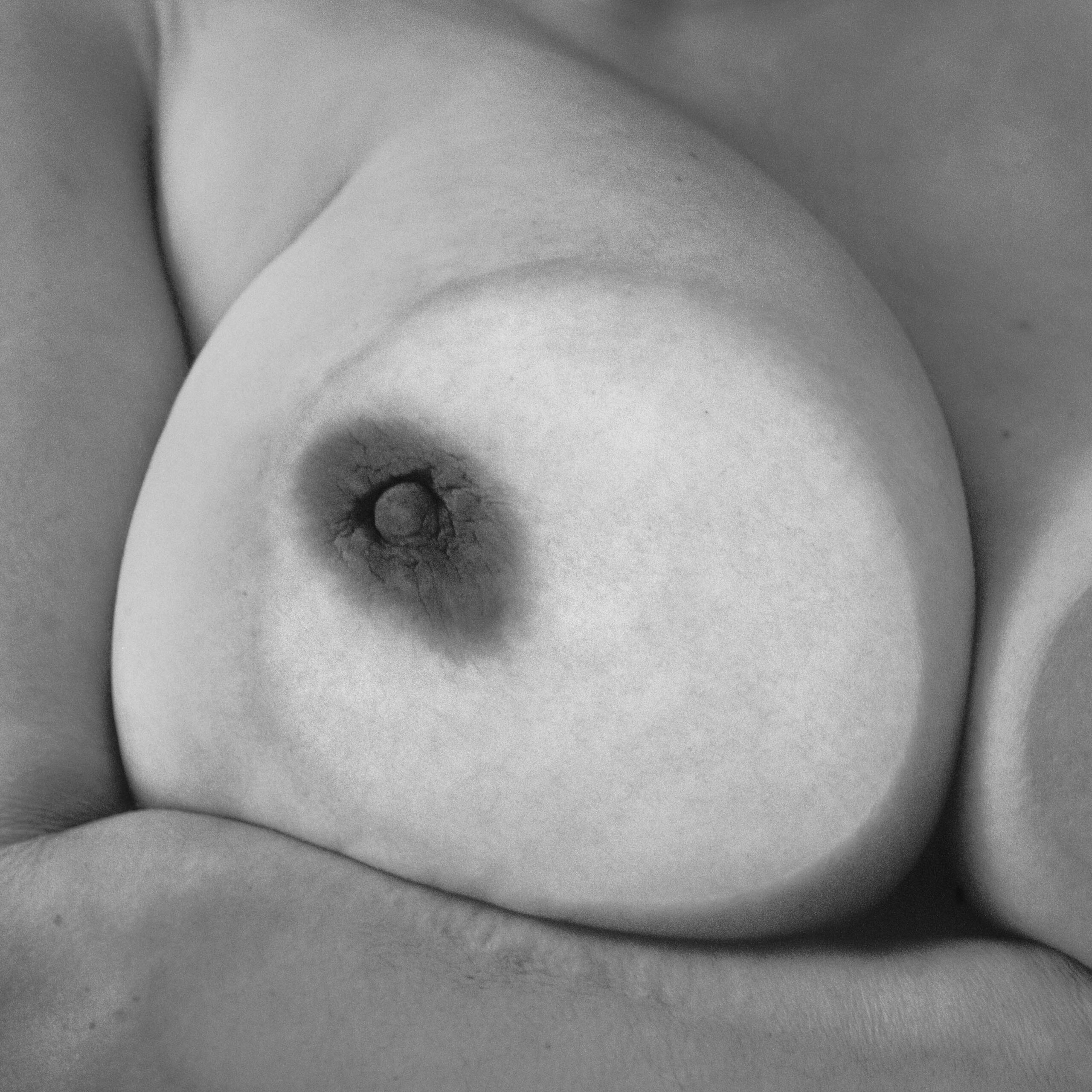 Single Breast and Arm